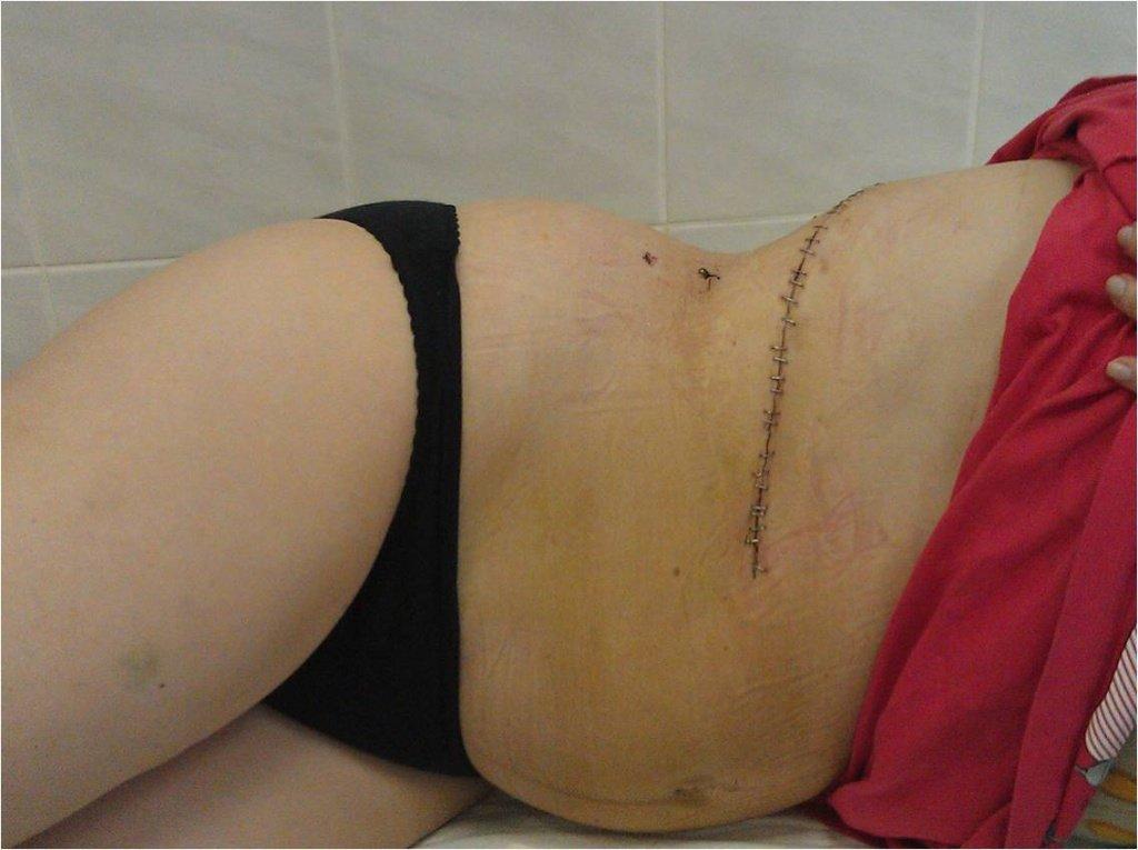 Последствия операции по удалению опухоли надпочечников