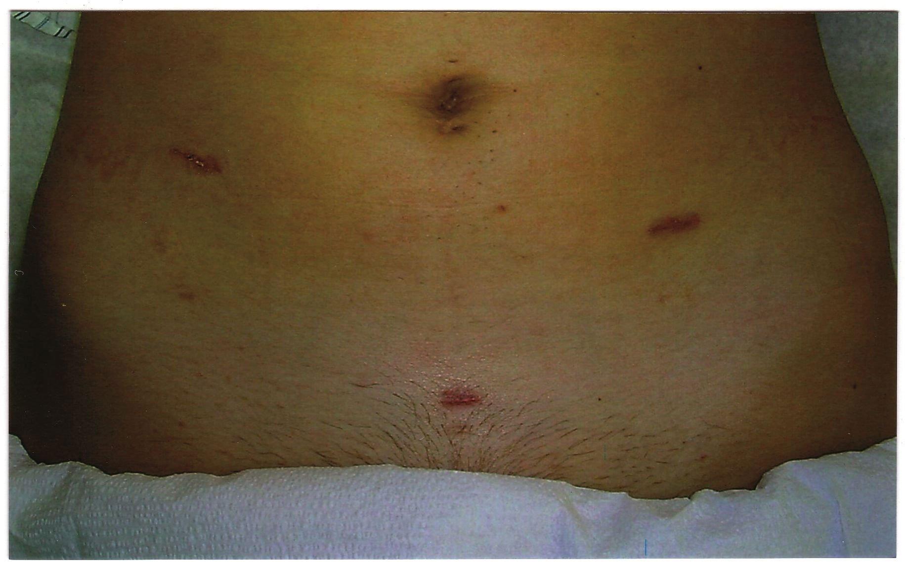 Последствия операции по удалению кисты