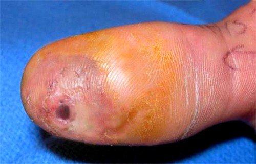 Способы лечения панариция пальца на руке фото