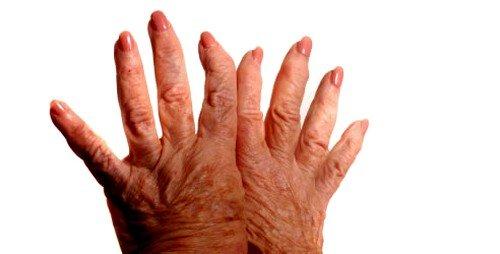 Артроз пальцев рук, симптомы и лечение фото