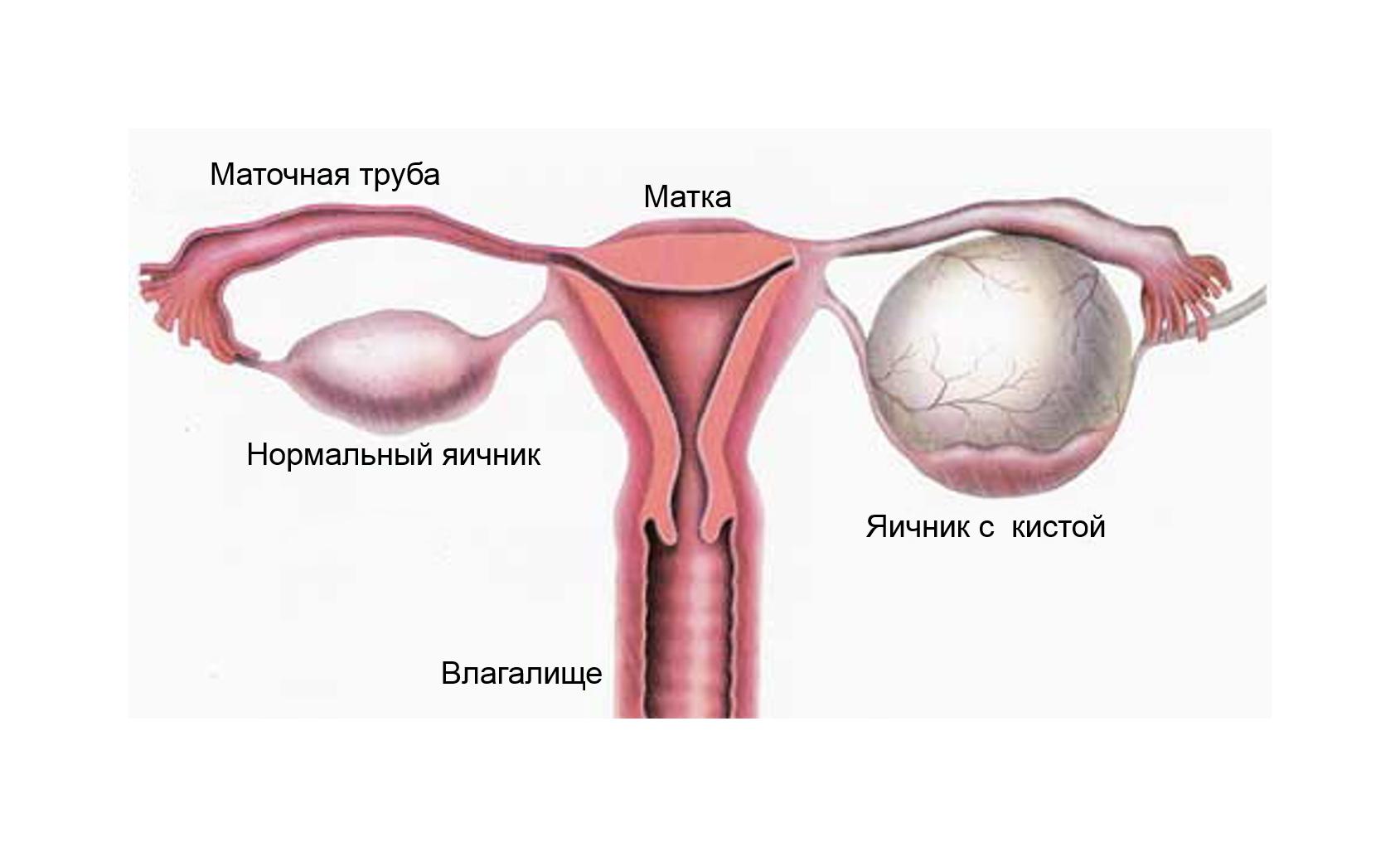 Появление параовариальной кисты яичника