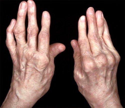 Артроз – это заболевание дегенеративного характера, поражающее суставы человеческого тела