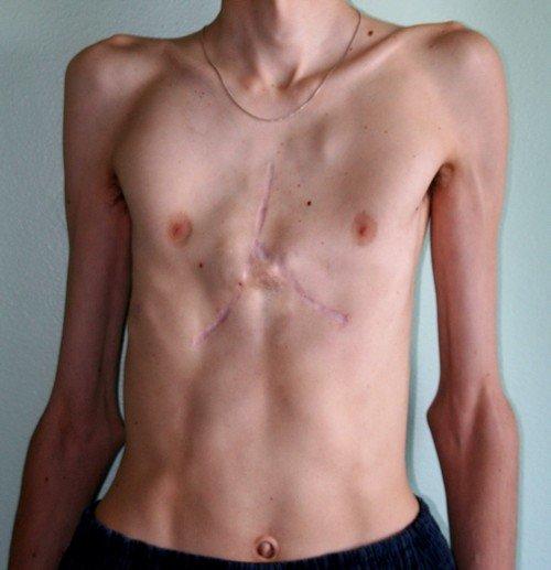 Синдром Марфана предполагает поражение коллагена, причем практически всегда эти поражения носят структурный характер