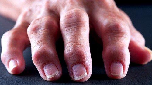 ревматоидный артрит представляет собой воспалительное суставное заболевание системного характера с прогрессирующим эрозивно-деструктирующим полиартритом