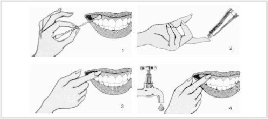 Схема нанесения солкосерил дентальной адгезивной пасты на слизистую оболочку 1. Просушить поверхность нанесения ватным тампоном или бумажной салфеткой.  2. Нанести пасту на чистый кончик пальца или ватный тампон. 3. Нанести пасту тонким слоем. Не втирать. 4. Распределить пасту ровным слоем по всей поверхности смоченным водой кончиком пальца или ватным тампоном.