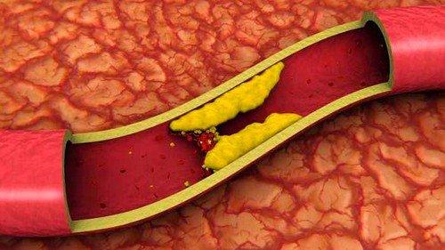 Очистка сосудов народными средствами не только поможет избежать появление многих заболеваний, но и становится залогом нормальной циркуляции крови во всех органах