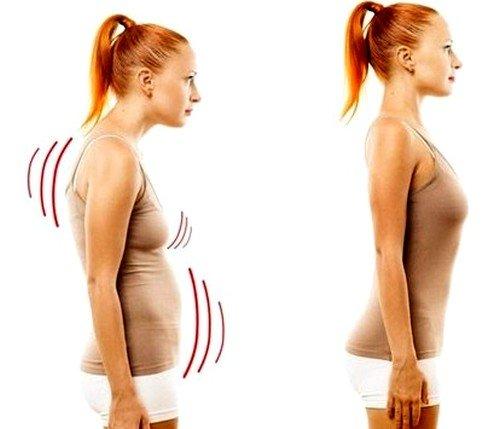 Характерные внешние признаки лордоза – это выпирающий живот, таз отклонен кзади, колени раздвигаются в противоположные стороны