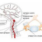 Синдром позвоночной артерии у женщины