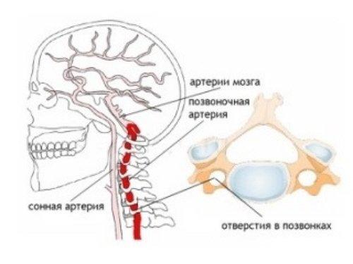 Синдром позвоночной артерии: симптомы и лечение фото