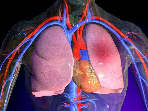 При врожденных либо приобретенных заболеваниях сердца и сосудов, не исключается возможность развития отечности в легких