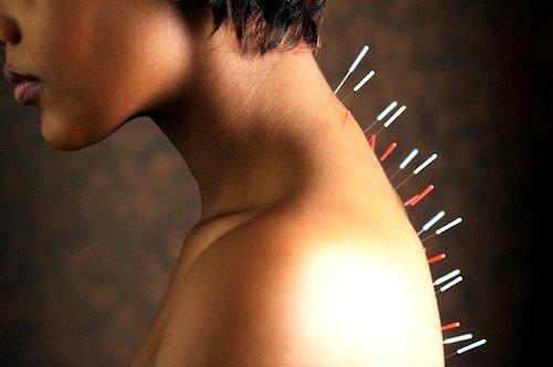 Иглоукалывание при остеохондрозе шейного отдела фото