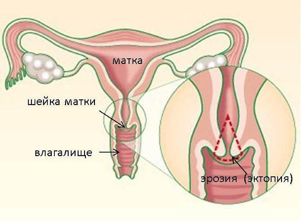 Причины эрозии шейки матки