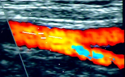 Дуплексное ультразвуковое сканирование представляет собой современный способ ультразвукового обследования, с помощью которого можно получить двухмерное изображение сосудов и определить состояние кровеносной системы, характер и скорость кровотока в нем