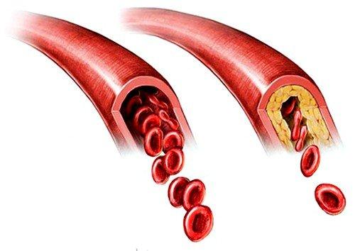 Дуплексное сканирование сосудов шеи и головы назначается при выявлении эндартериита и атеросклероза сосудов