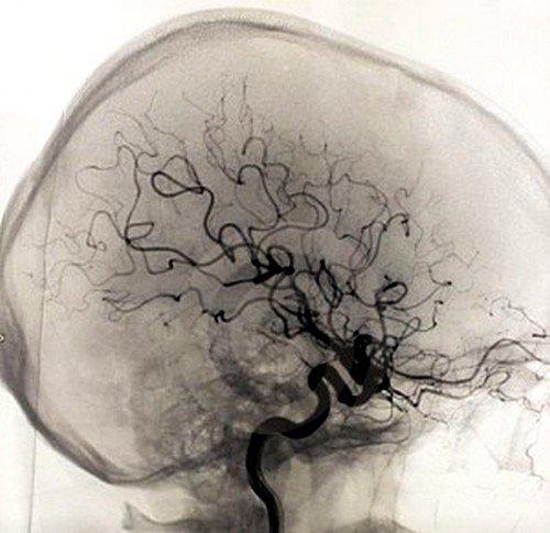 РЭГ сосудов головного мозга у пожилой женщины