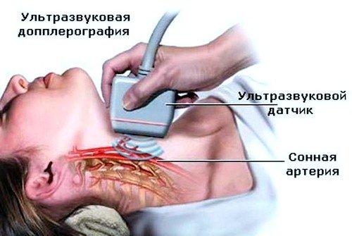 ангиография сосудов шеи рекомендуется при различных стадиях остеохондроза