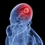 Ранняя стадия опухоли мозга