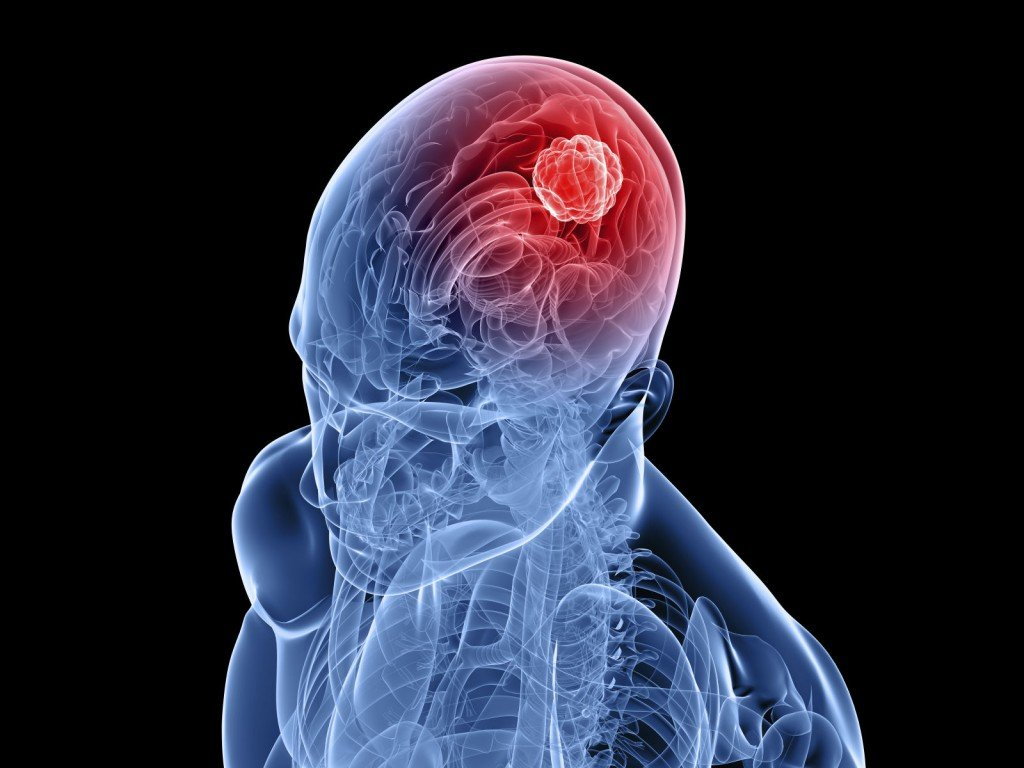 Ранняя стадия опухоли головного мозга фото