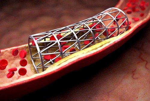 Металлические стенты занимают лидирующие позиции при стентировании сосудов сердца