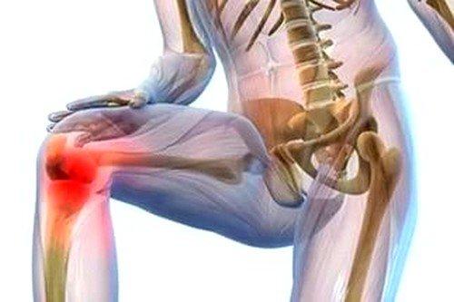 Ревматизм суставов: симптомы и лечение фото