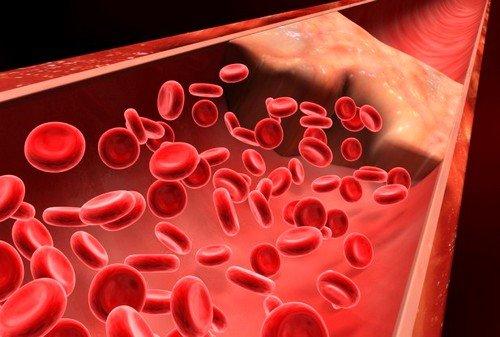 При нарушенной свертываемости крови стентирование противопоказано