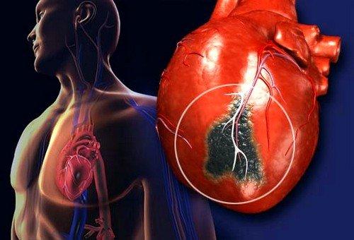 Инфаркт у мужчин и женщин: симптомы и первые признаки фото