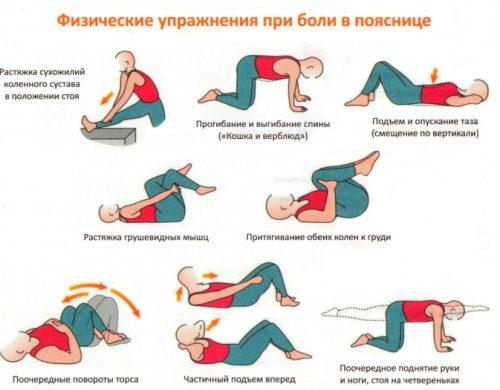 Рекомендованные упражнения при протрузии дисков позвоночника поясничного отдела
