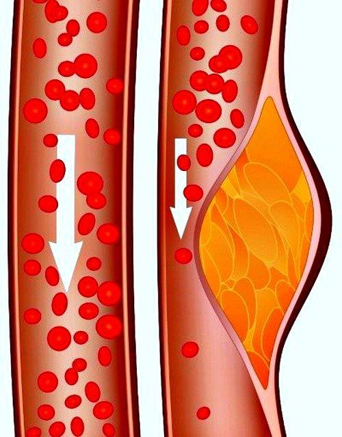 Холестерин относят к липидам, которые поддерживают в норме существование человека на протяжении долгих лет