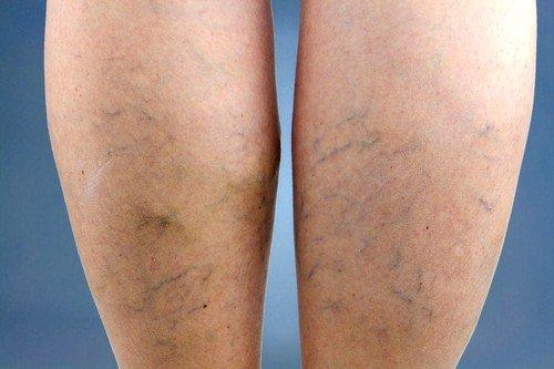 Профилактика варикоза вен на ногах фото