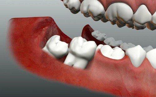 прорезка резца сопровождается воспалительной реакцией, которая может спровоцировать болезни на других элементах