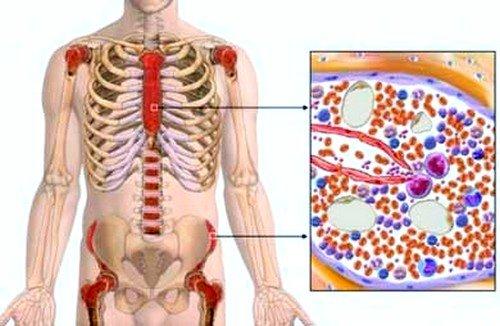 Длительный период миеломная болезнь протекает без каких-либо признаков, характеризуясь только увеличением скорости оседания эритроцитов в крови