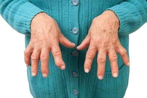В качестве основных этиологических факторов называются стрептококки группы А и В, кишечная и мочевая инфекция, микоплазма