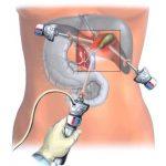 Проведение лапароскопии желчного пузыря