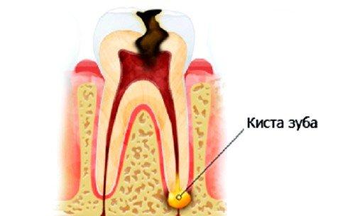 Возможно ли лечение кисты зуба без удаления фото