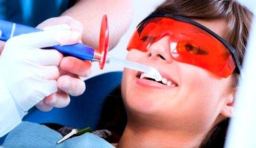 Чистка зубов ультразвуком: отзывы до и после фото