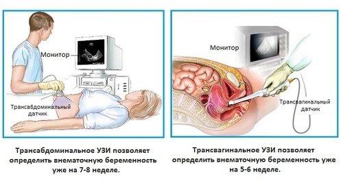 Внематочная беременность и УЗИ