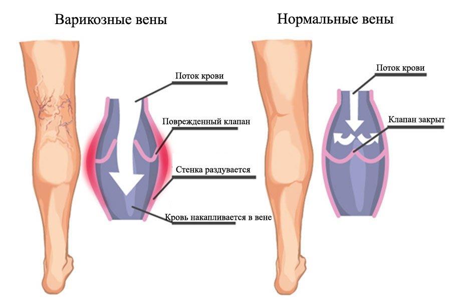 Проблемы с венами могут развиваться постепенно и приводят к тромбозу