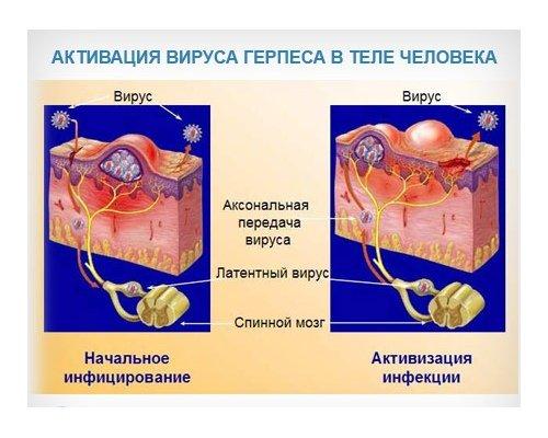 Вирус Varicella-zoster остается в спинномозговых корешках и ганглиях на протяжении всей жизни человека