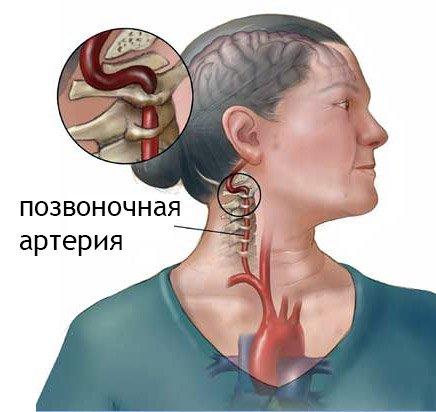 Синдром позвоночной артерии при шейном остеохондрозе: симптомы, профилактика фото