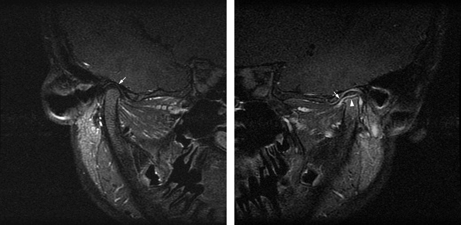 Рентгеновский снимок артрита