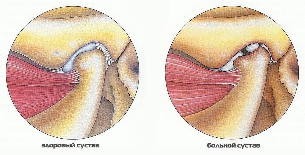 Как лечить артрит верхней челюсти thumbnail
