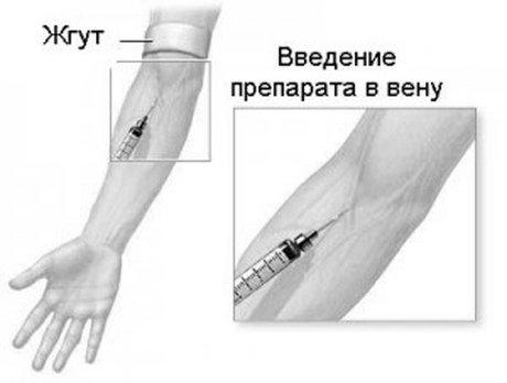 Если дозировка больше 50 мкг на 1 кг веса, цефтриаксон вводят внутривенно.