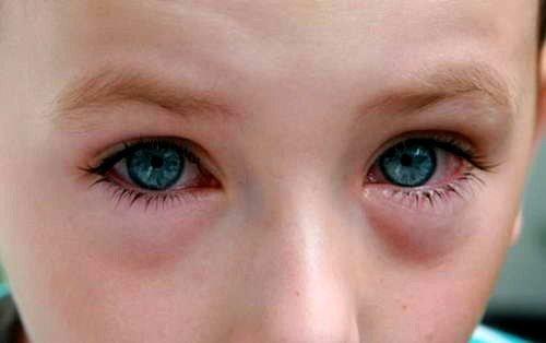 Аллергический конъюктивит глаз