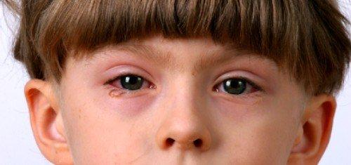 Как правильно лечить конъюнктивит у детей фото