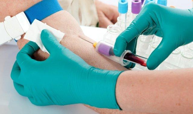 Обязательное обследование - биохимический анализ крови