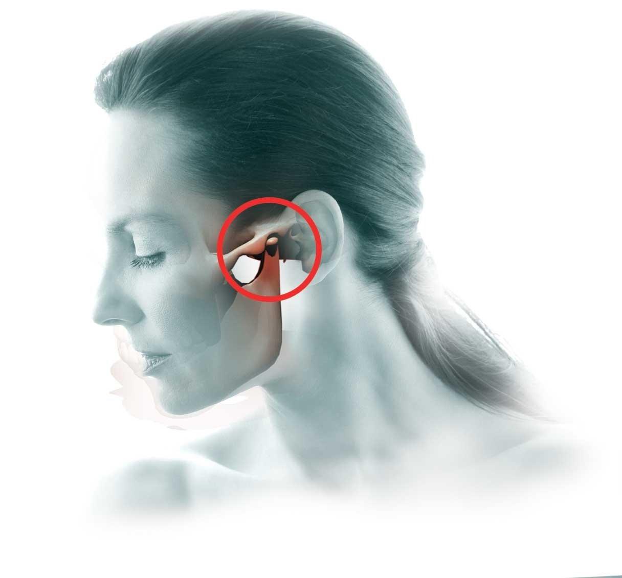 Артрит челюстно лицевого сустава симптомы и лечение фото