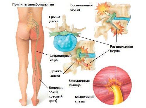 Сочетание люмбаго с ишиасом называется люмбоишиалгия