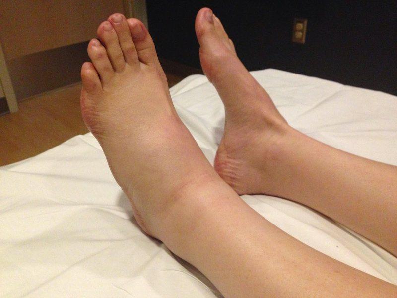Асимметричный отек ног