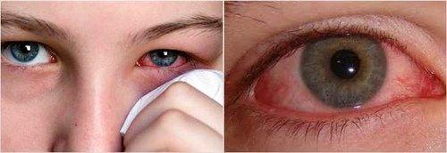 При повреждении глазного нерва образуется офтальмогерпес