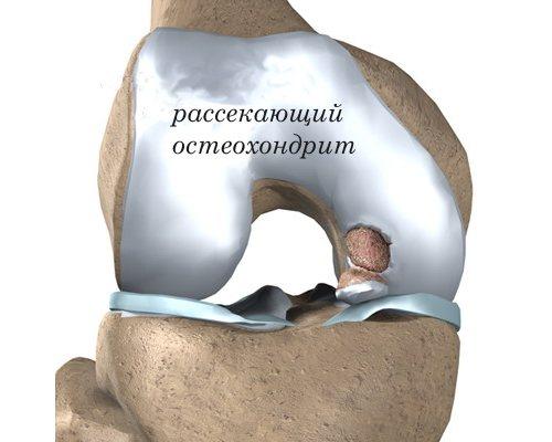 При остеохондрите либо болезни Шлаттера может ощущаться болевой синдром
